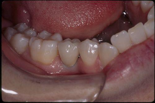 Dental Implants After Image - Creating Dental Excellence